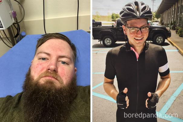 10 снимков людей до и после того как бросили пить