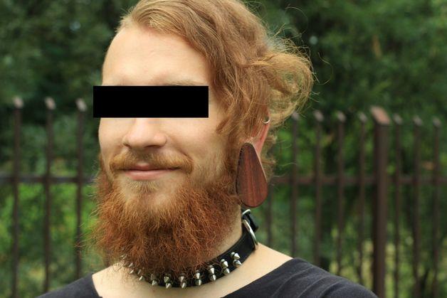 За подпольную операцию жителя Барановичей судить не будут