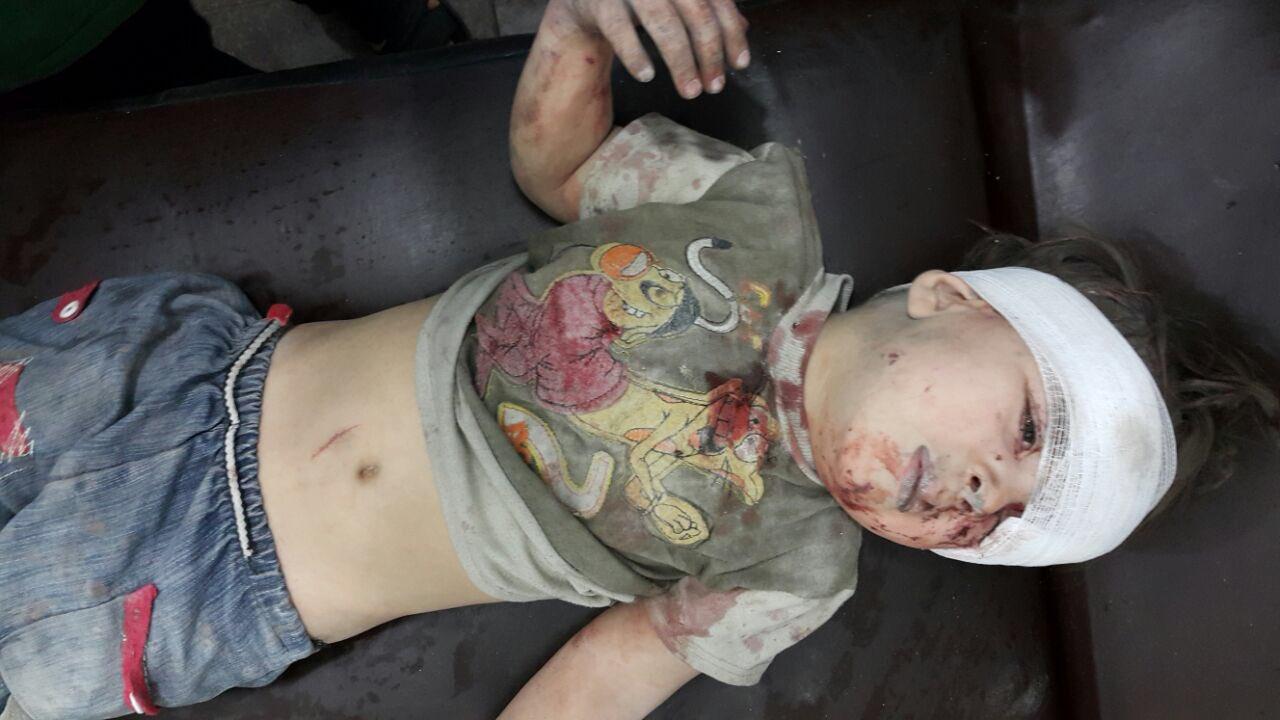Выживший после бомбежки мальчик. Фото: Raf Sanchez