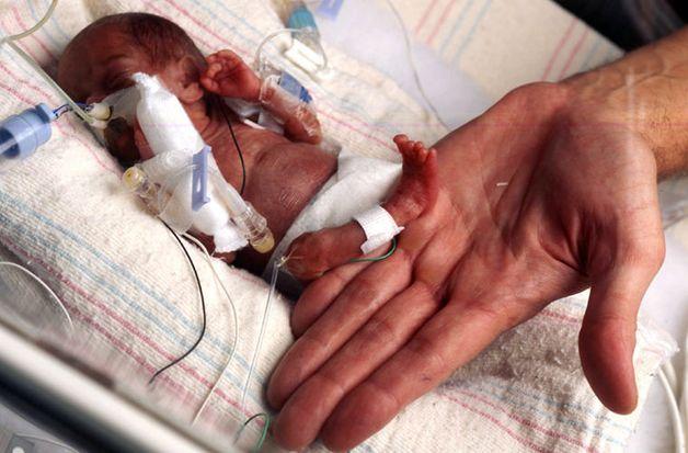 Самая маленькая в мире девочка. Фото: bigpicture.ru