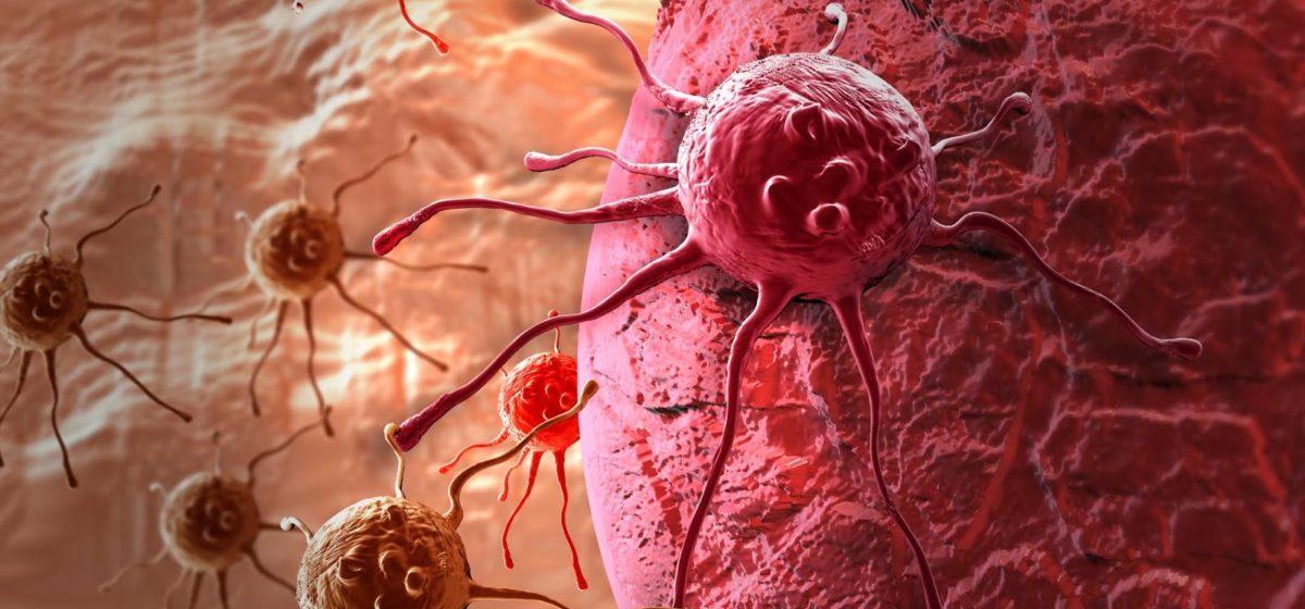 Что я сделал бы, если бы мне поставили диагноз «рак». Пять советов от американского врача