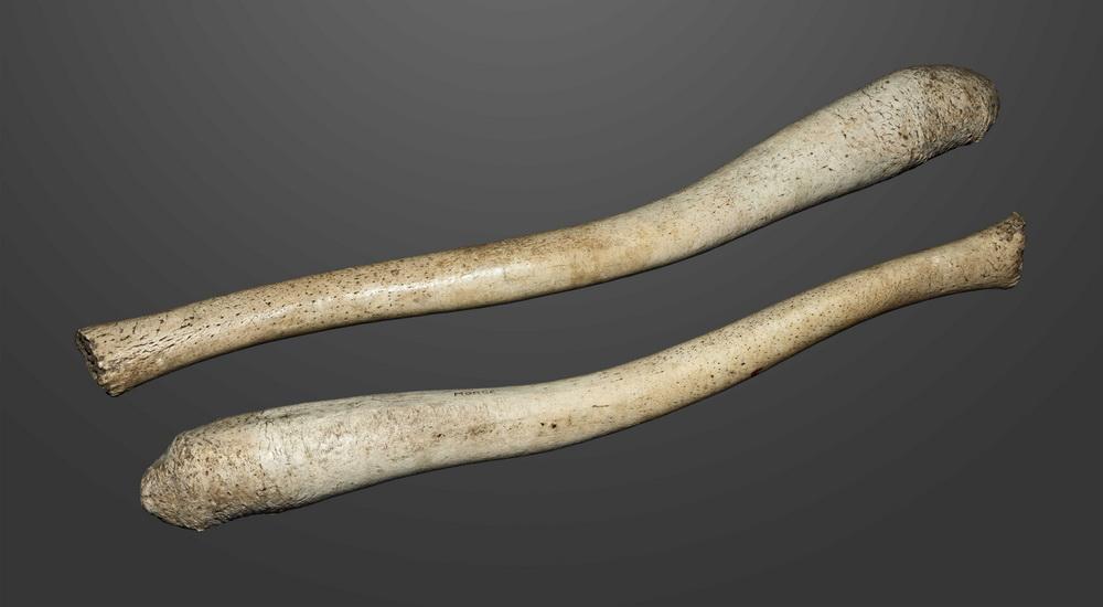 Ученые узнали, почему в мужских пенисах больше нет кости