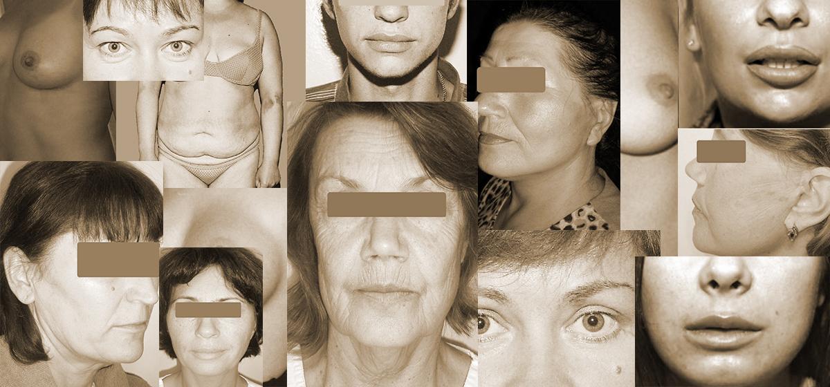Три истории женщин, которые сделали пластические операции