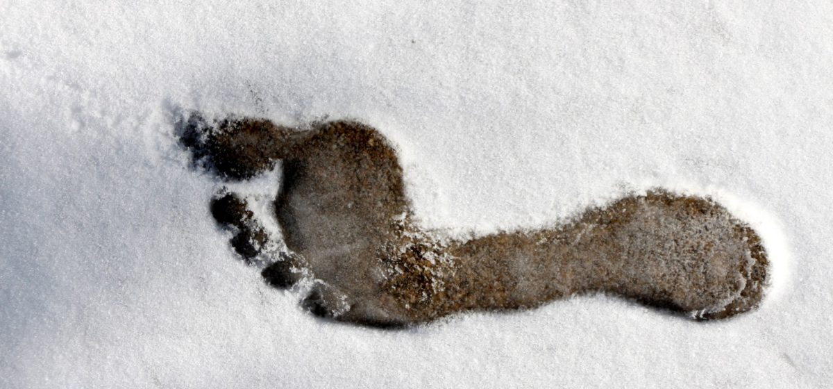 Ампутация обеих стоп из-за обморожения грозит мужчине в Барановичах