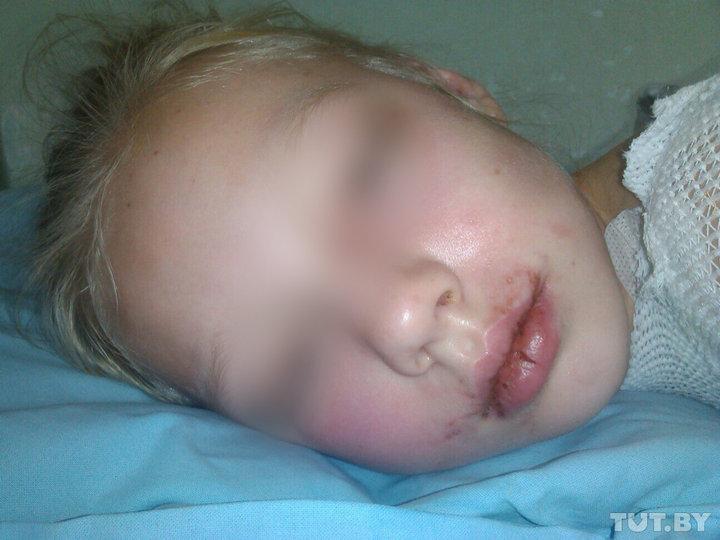 В Минске осудили социального педагога, которая избила и облила кипятком свою дочь