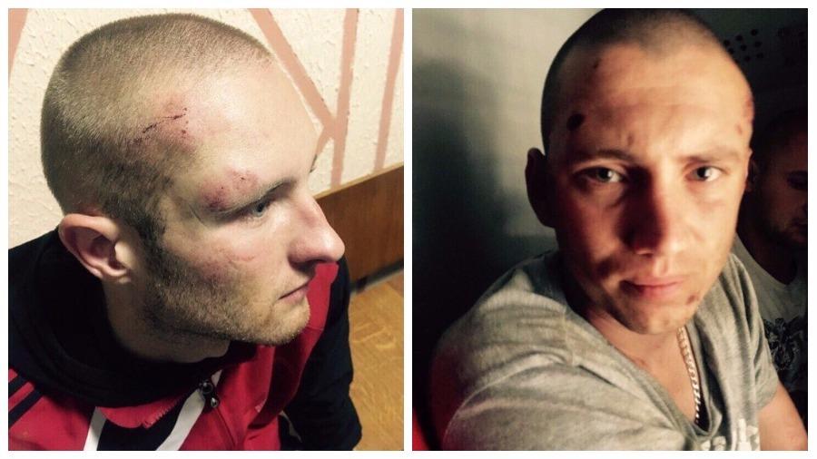 Двое жителей Витебска обвиняют сотрудников ОМОН в избиении