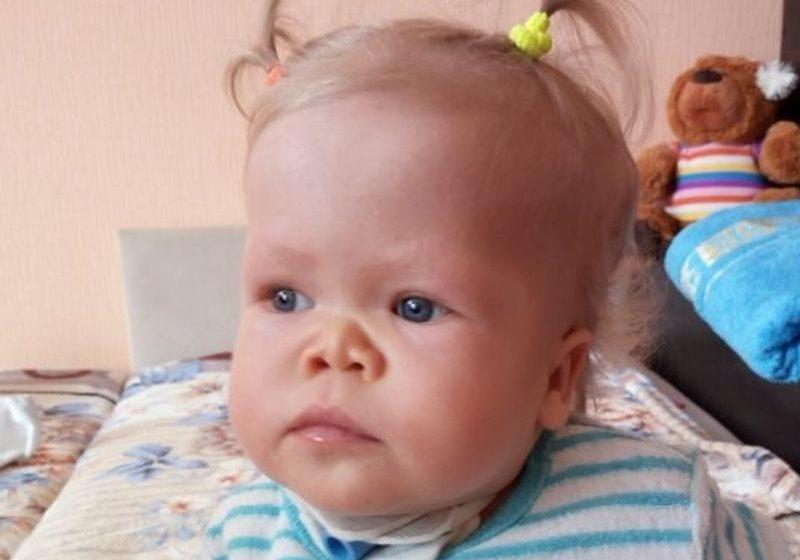 Годовалой Кристине Швед из Барановичей не хватает на операцию около 6000 евро