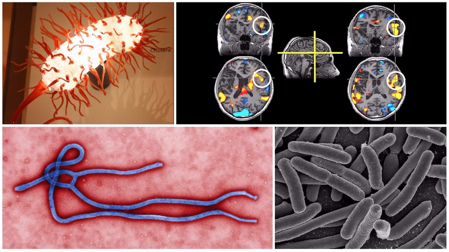 Шесть болезней, которые могут убить человека за один день