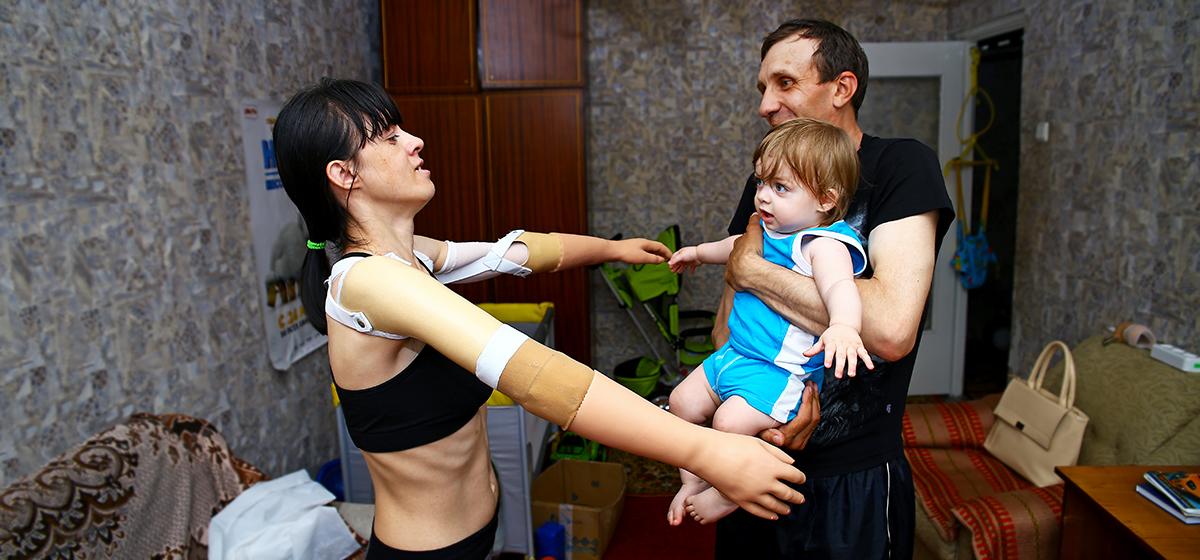 Как живет и воспитывает ребенка жительница Барановичей, потерявшая руки после нападения собаки
