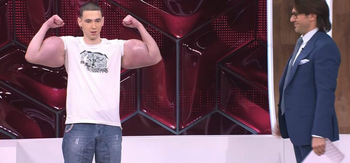 Россиянину, который ради лайков с помощью уколов нарастил себе гигантские бицепсы, грозит ампутация рук (видео)