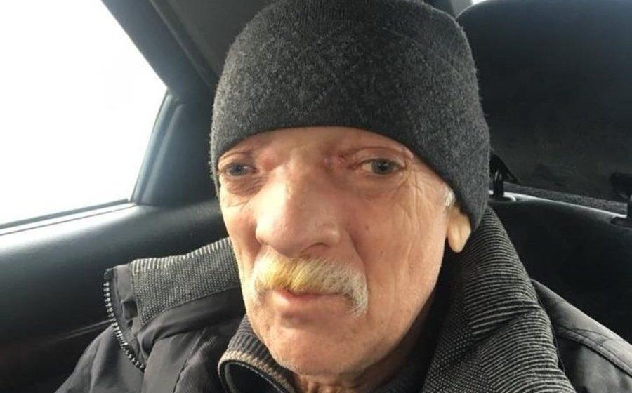 «Лицом стал как пришелец»: медики своевременно не диагностировали гайморит, теперь житель Речицы останется инвалидом