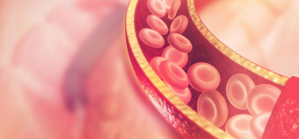 Как предотвратить тромбоз: восемь продуктов для разжижения крови