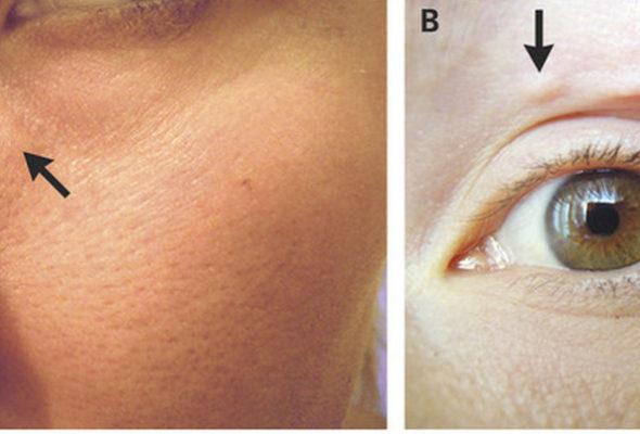 У россиянки после укуса комара под кожей на лице поселились черви