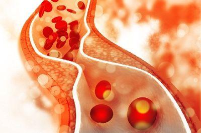 Как распознать тромб в легких: семь симптомов, которые нельзя пропустить