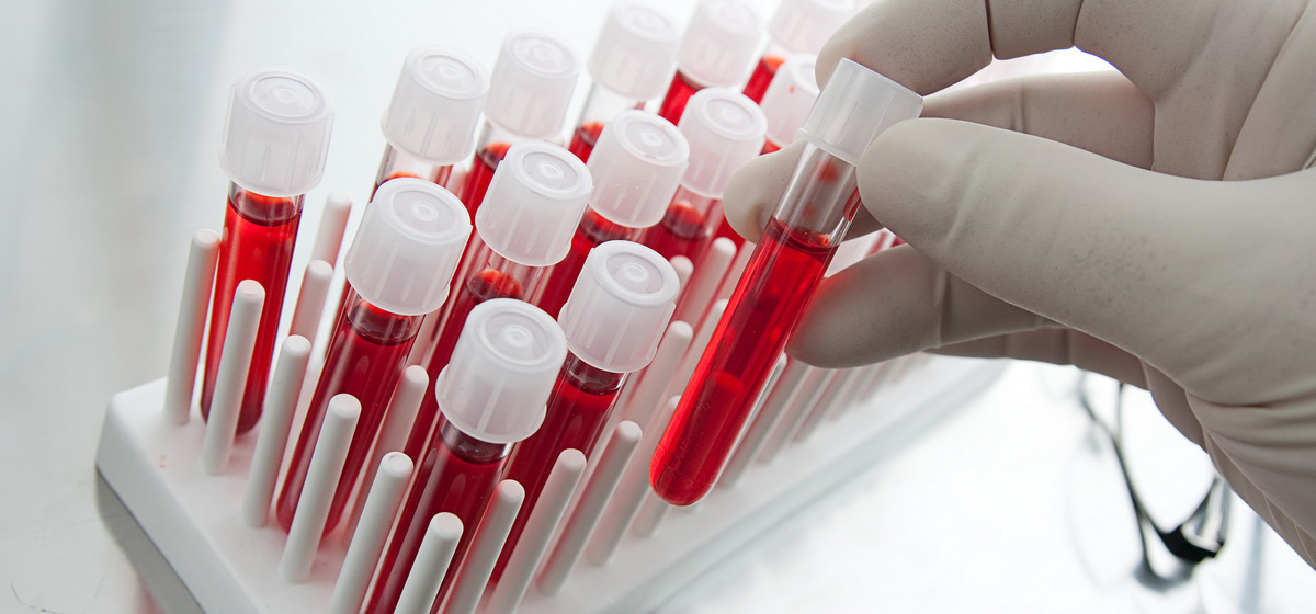 О чем говорит анализ крови ребенка