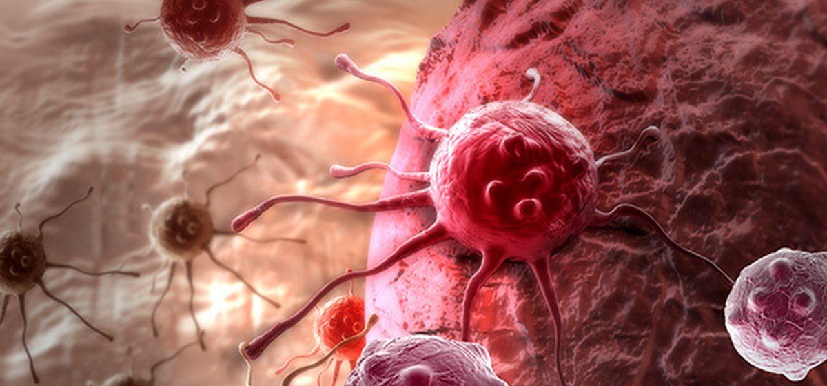Семь мифов о раке, в которые пора перестать верить