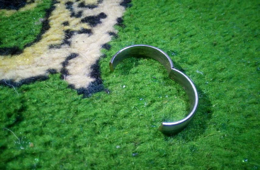 В Светлогорске девушка не смогла снять кольцо и вызвала спасателей