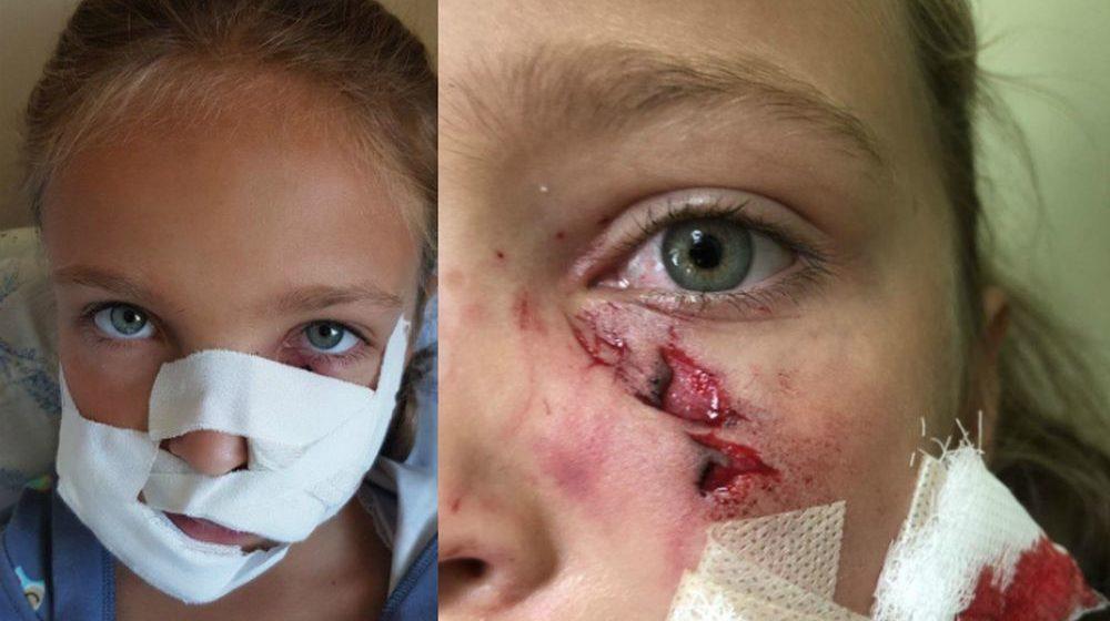 В Ратомке такса «разорвала» лицо ребенку. Хозяин пса: «Произошло чудовищное стечение обстоятельств»