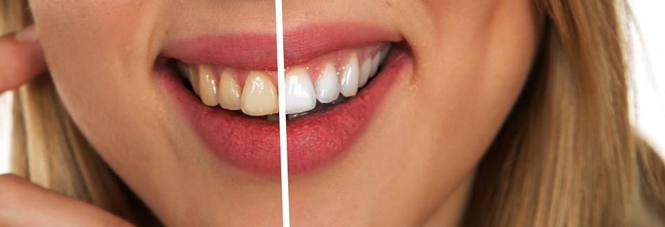 ТОП-10 продуктов, укрепляющих зубы