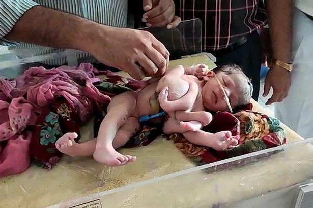 Девочка с четырьмя ногами и тремя руками родилась в Индии