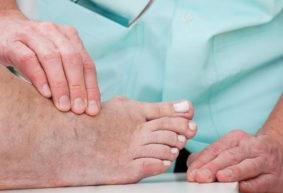 «Косточка» на ноге: кто в группе риска и виноваты ли туфли на высоком каблуке