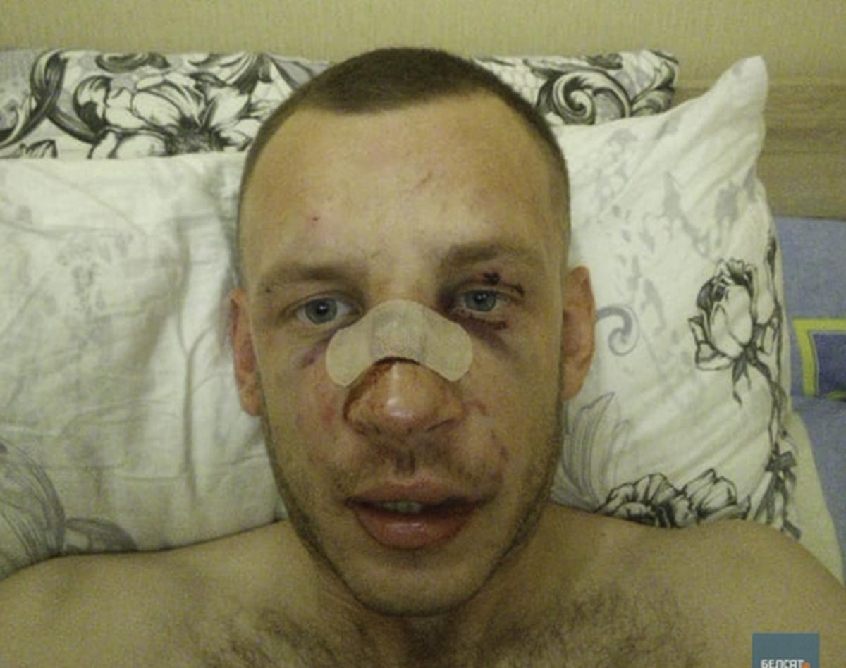 Андрей Соловьев после избиения. Фото опубликовано с согласия Соловьева, belsat.eu