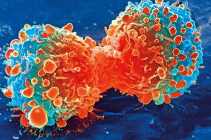 Ученые нашли связь между хроническим воспалением и раком
