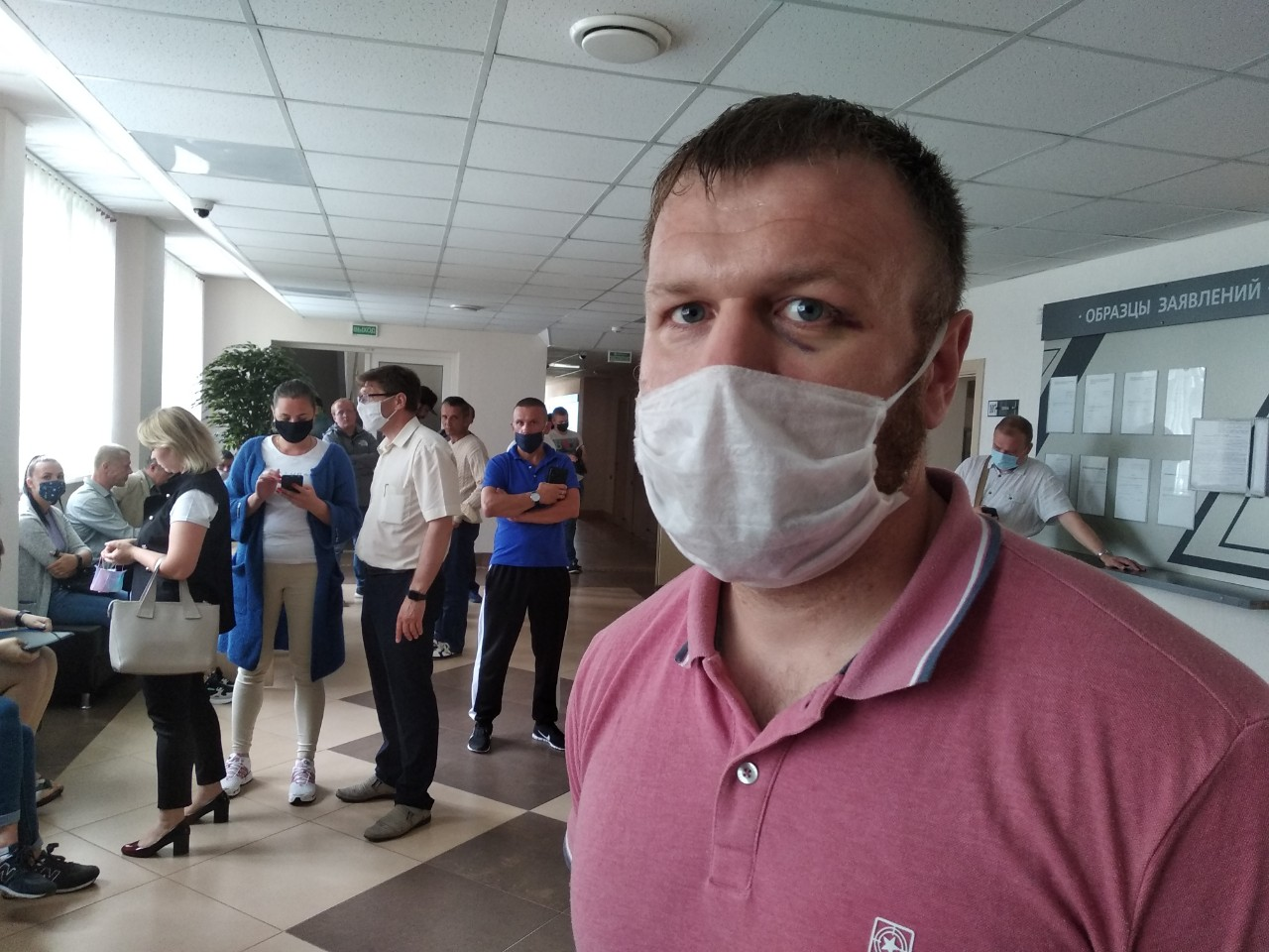 Александр Позняк с синяком под глазом. Фото: Ирина КОМИК, Intex-press