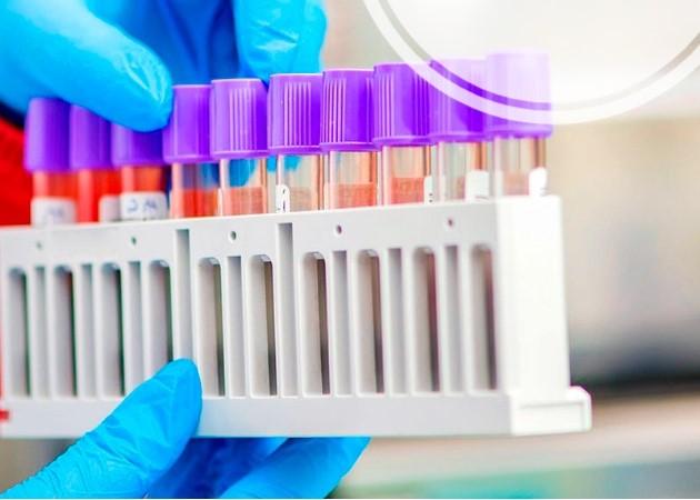 В Барановичах вновь стали платно тестировать на коронавирус. Где можно сдать анализ?