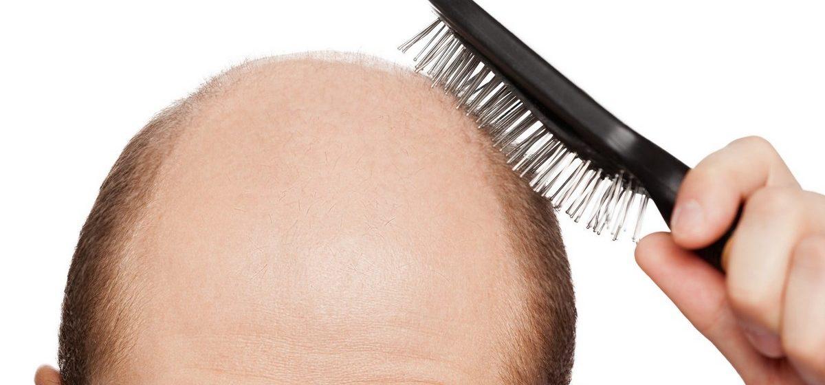 Дерматолог назвал две главные причины выпадения волос