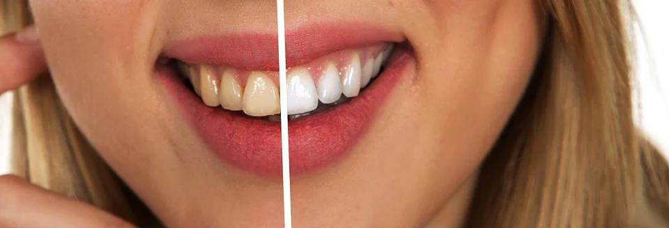 Эти привычки уничтожают зубы: стоматологи рассказали о главных врагах улыбки