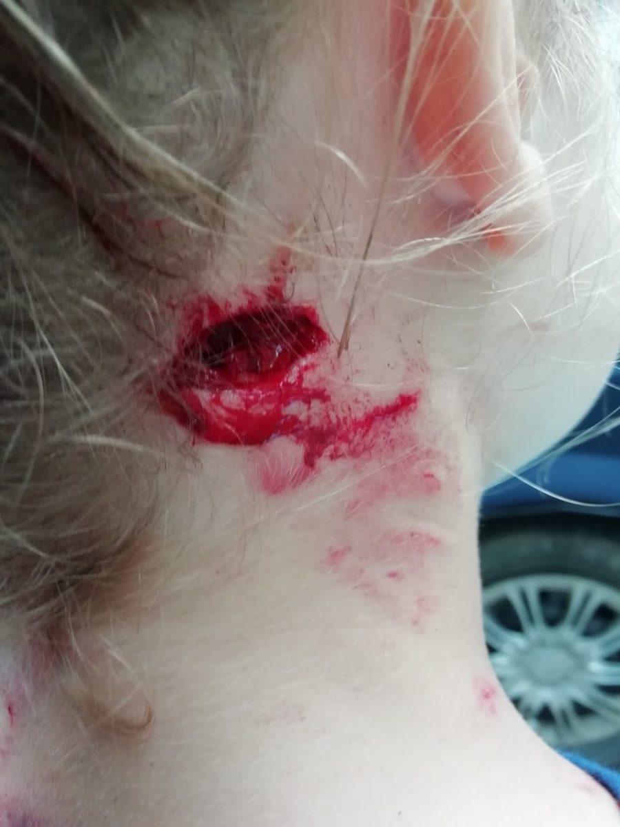 Раны на шее 7-летней девочки, пострадавшей от нападения собаки. Фото отца