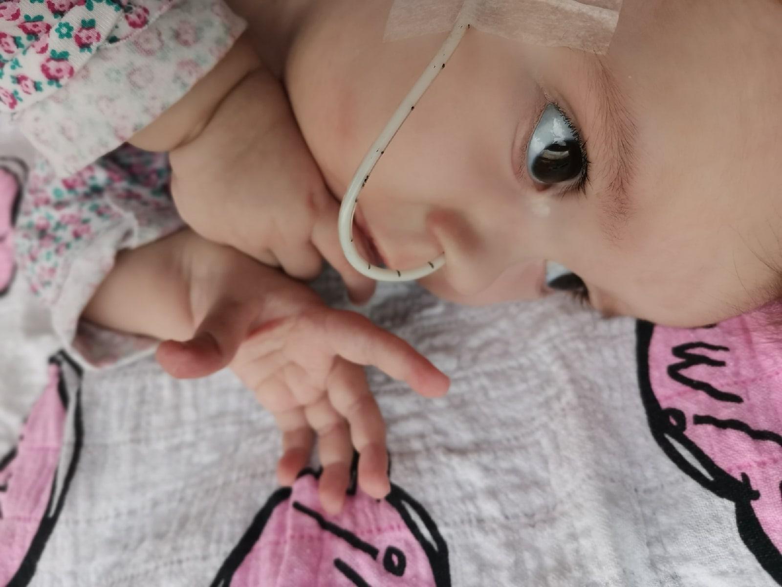 София Жагунь пока получает питание через зонд. Фото предоставлено Юлией ЖАГУНЬ