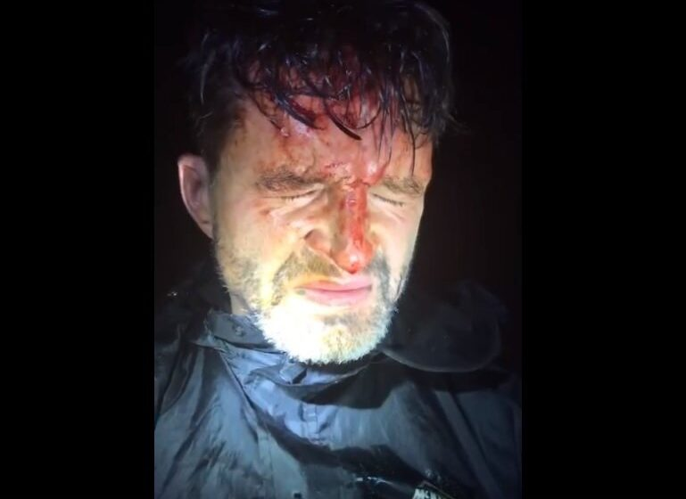 Акрываўлены мужчына кажа міліцыі: «Я памыліўся палітычнымі поглядамі». Што пра яго вядома?