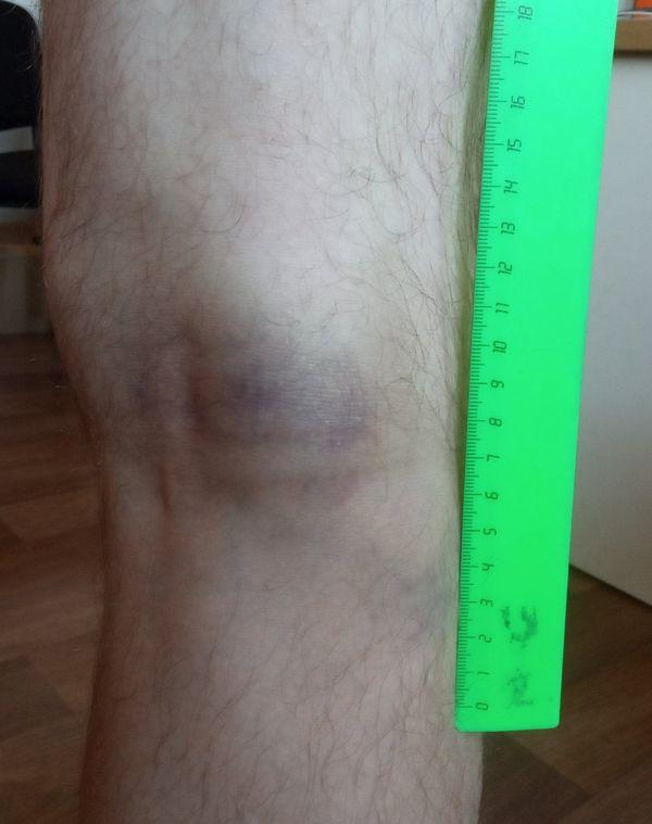 Синяк от дубинки на ноге Александра. Фото: личный архив