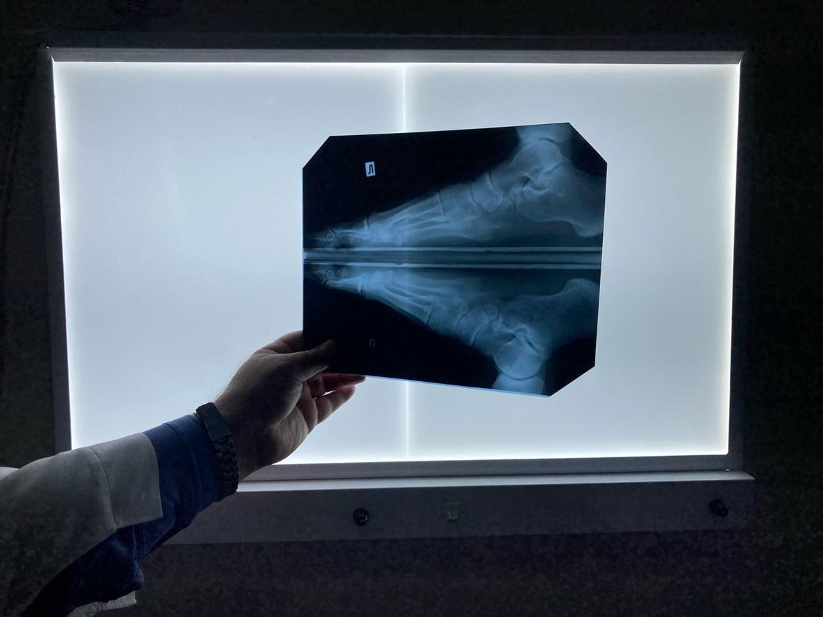 Рентгеновский снимок одного из пациентов