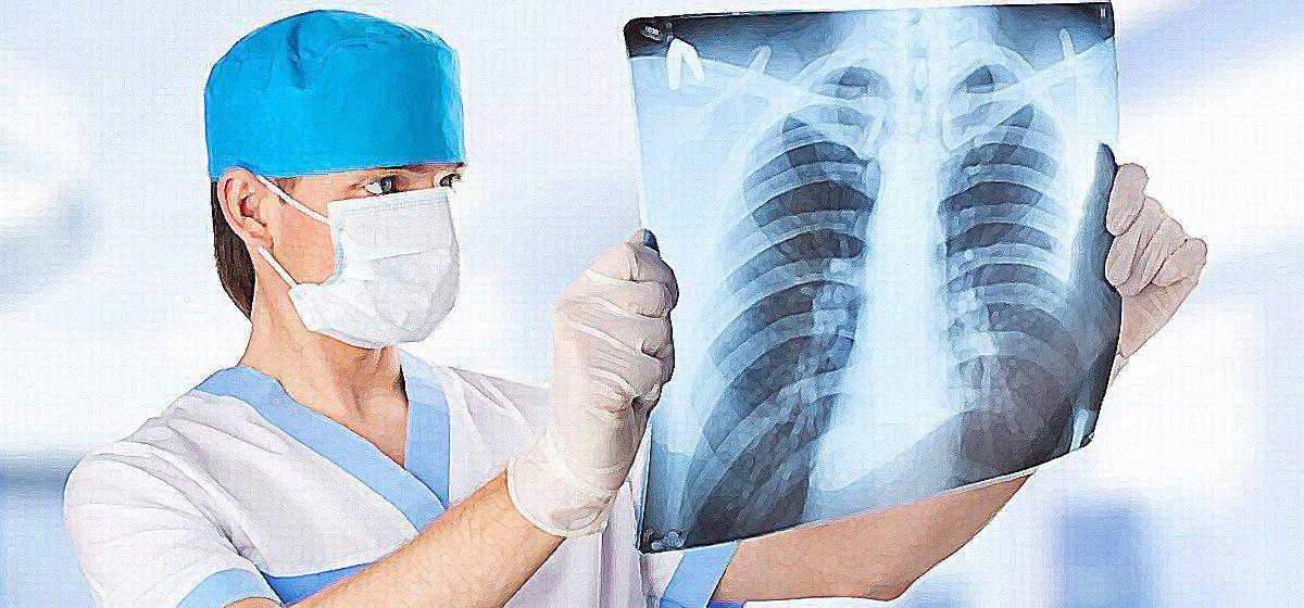 Главные симптомы пневмонии. Чек-лист от врачей, чтобы самостоятельно распознать воспаление легких