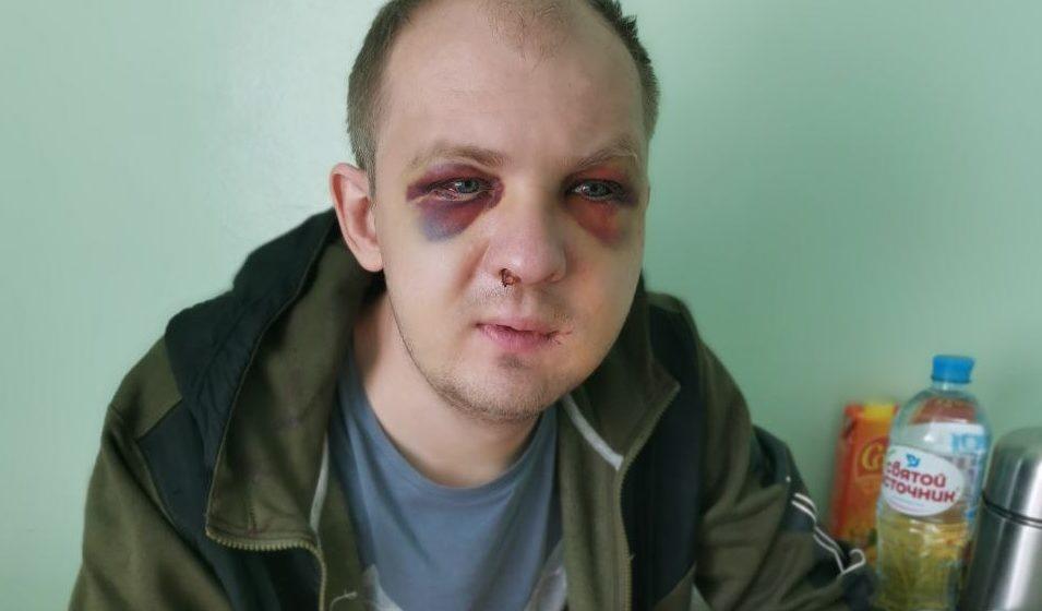 Избитому ОМОНом гродненскому таксисту СК отказал в возбуждении дела: «Нет состава преступления»
