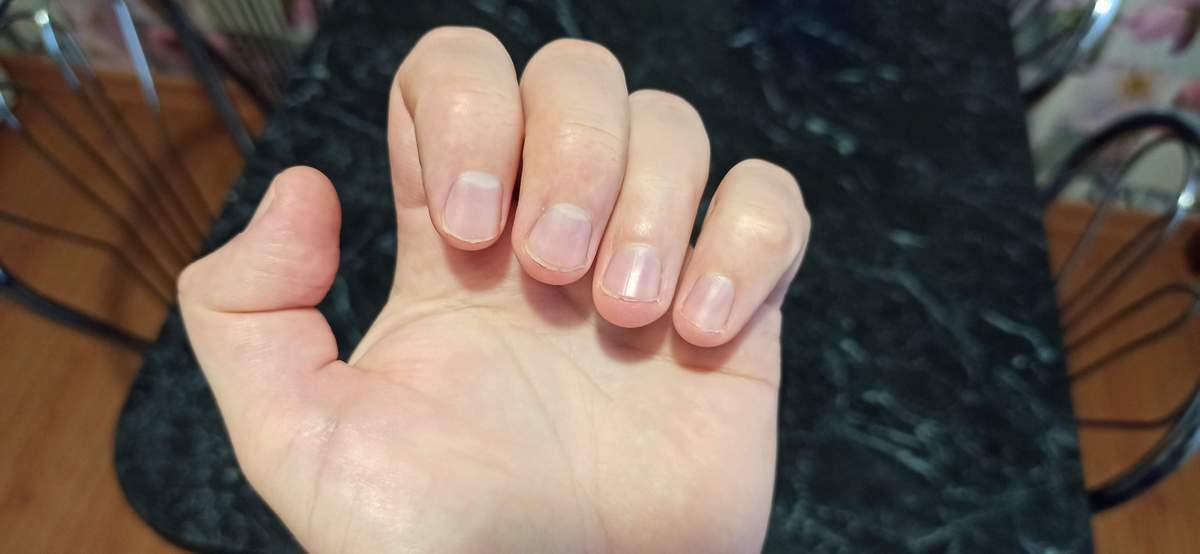 О каких заболеваниях говорят полоски на ногтях?