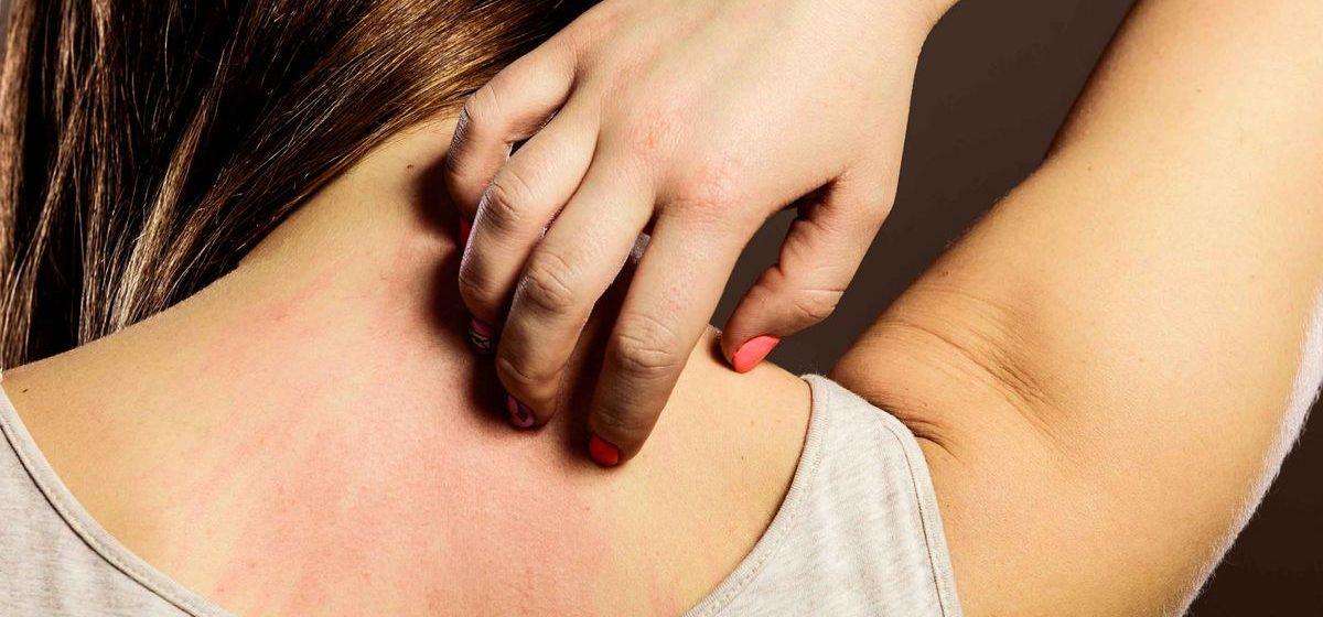Сыпь на коже может оказаться симптомом коронавируса. Вот какой она бывает