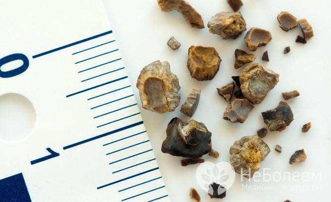 Камни в организме: четыре места, о которых не все знают