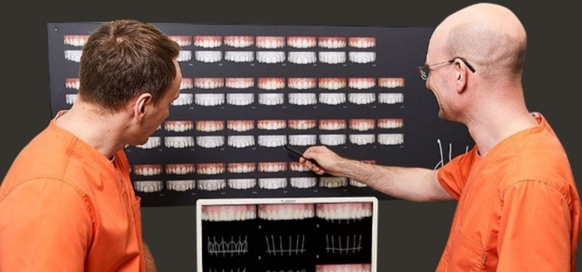 «После народных средств отбеливания приходится все тотально реставрировать». Стоматолог – о заболеваниях полости рта