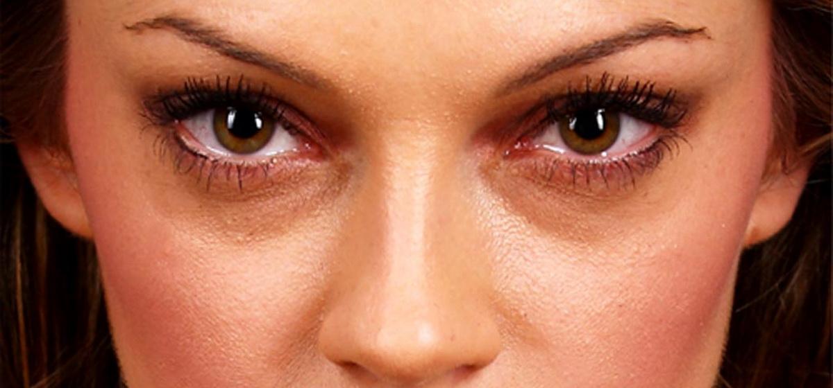 На какие болезни могут указывать круги под глазами, рассказала врач
