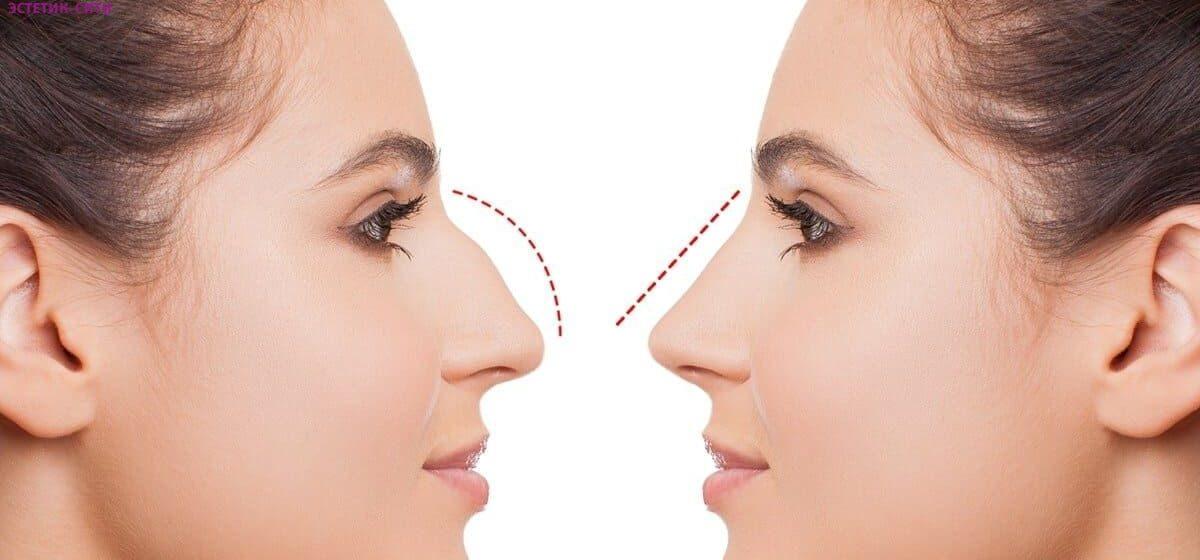 Касается почти всех: когда искривление носовой перегородки является поводом обратиться к врачу?